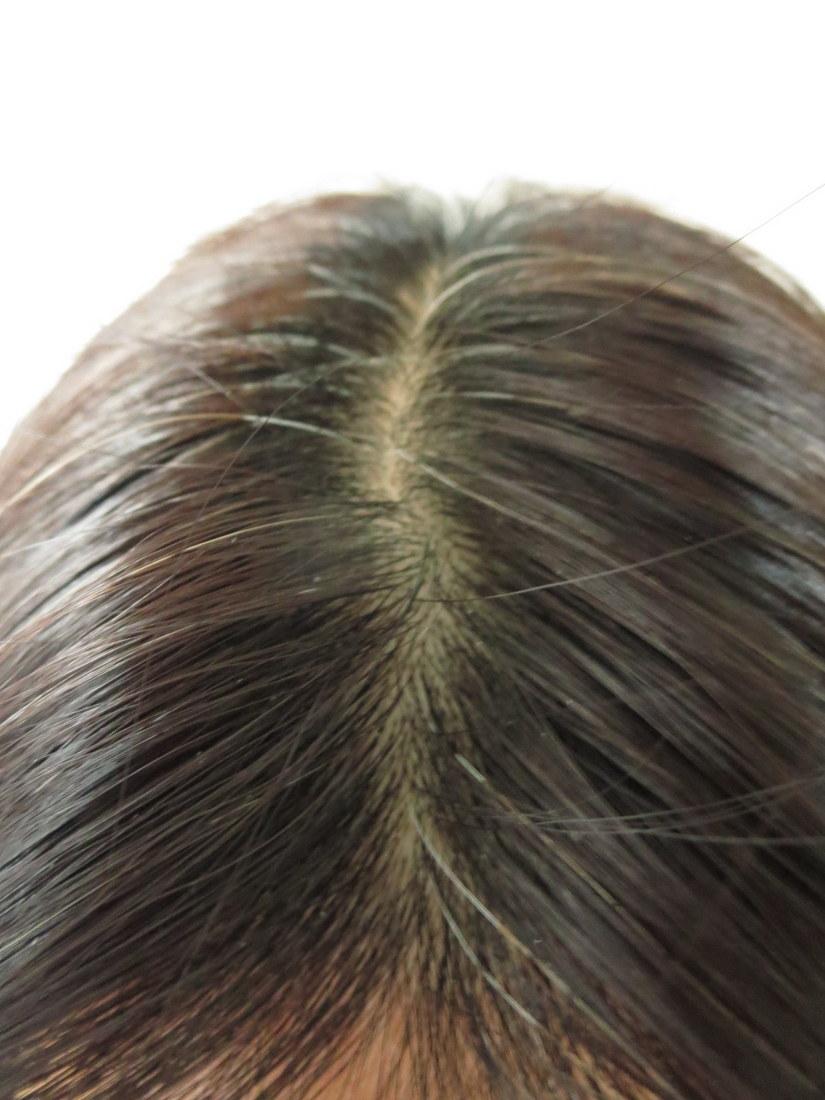 アンファースカルプDボーテ白髪染めビフォー頭頂部